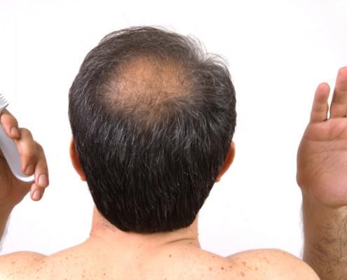 calvizie trapianto capelli