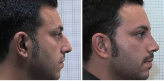 Rinoplastica foto 9: correzione profilo nasale uomo