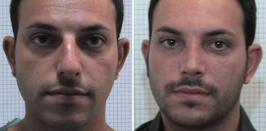 Rinoplastica foto 10: correzione dimensione e forma del naso uomo