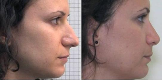 Rinoplastica foto 4: Naso lungo ed eccessivamente sporgente