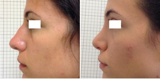 Rinoplastica foto 8: correzione del profilo disarmonico