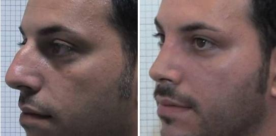 Rinoplastica foto 8: correzione gibbo maschile