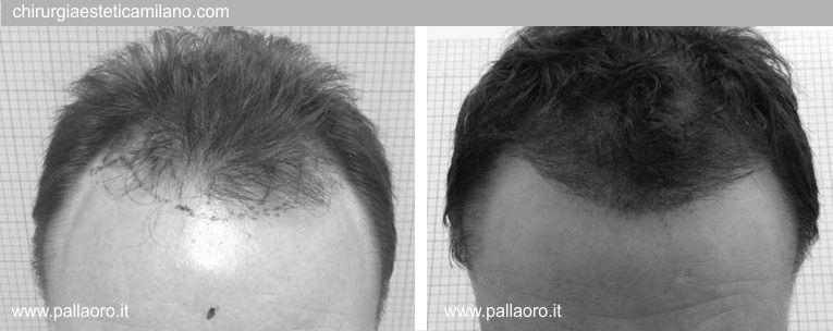 Trapianto capelli: Foto02
