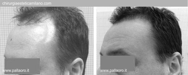 Trapianto capelli: Foto prima e dopo 03